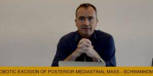 ROBOTIC EXCISION OF POSTERIOR MEDIASTINAL MASS - SCHWANNOMA